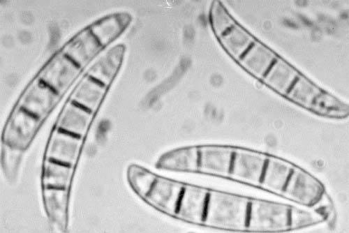 Макроконидии Fusarium фото