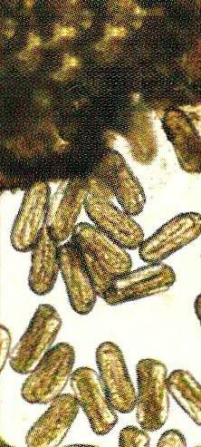 Рис. 4. Яйца отложенные самкой Heterodera schachtii в яйцевой