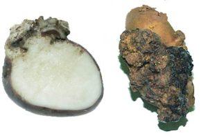 Рак картофеля фото