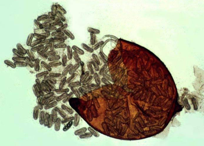 Циста золотистой картофельной нематоды фото